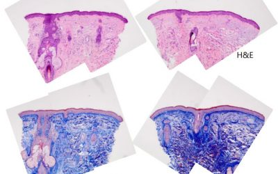 Histology Results Following JetPeel Treatment