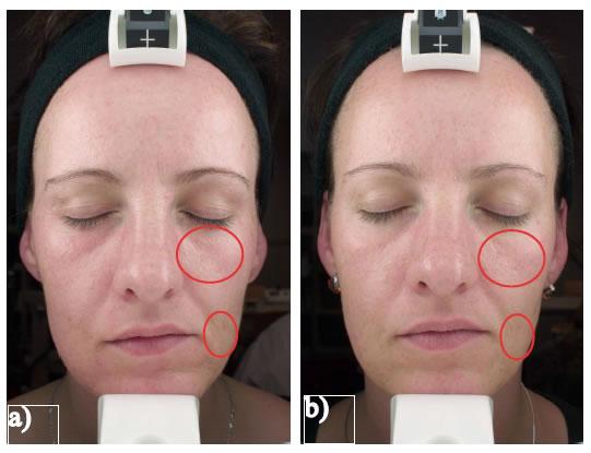 Fig. 4: standardized photography at a) baseline and b) after a six week treatment wih Jetpeela