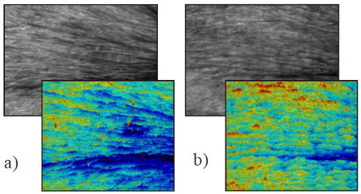 Fig. 8: Results of skin topography a) at baseline, b) after six week of treatment
