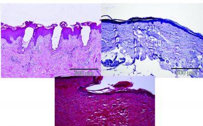 Uticaji tretmana lasera, RF i JetPeel na kožu