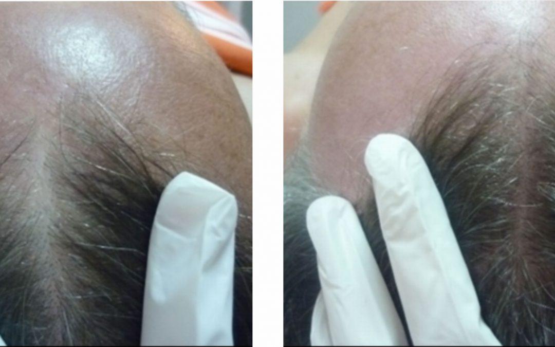Tretmani kose